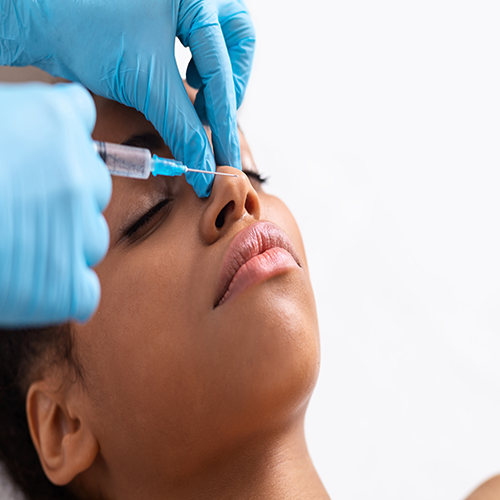Remodelage du nez par injection d'acide hyaluronique