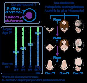 Alocépie schéma