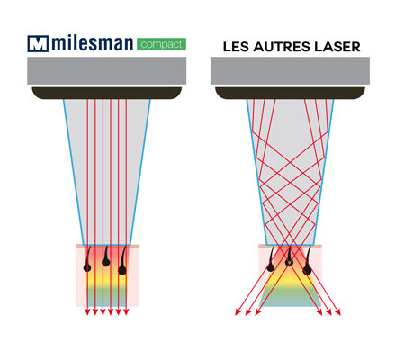 epilation definitive laser diode paris docteur chicheportiche