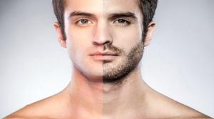 epilation definitive laser homme visage paris